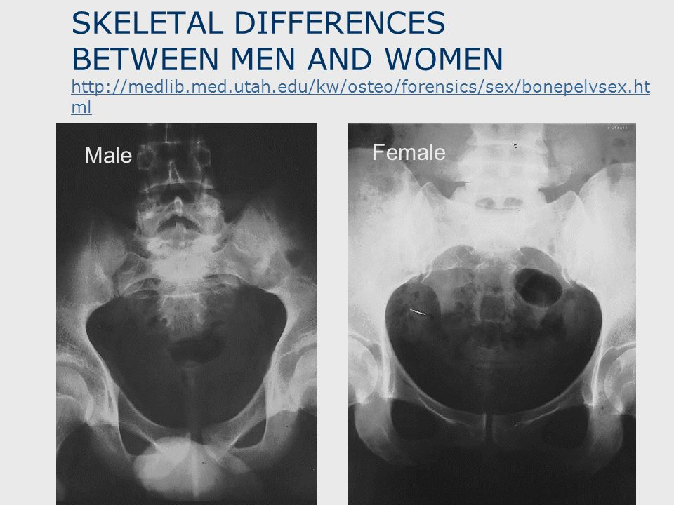 SKELETAL DIFFERENCES BETWEEN MEN AND WOMEN http://medlib. med. utah