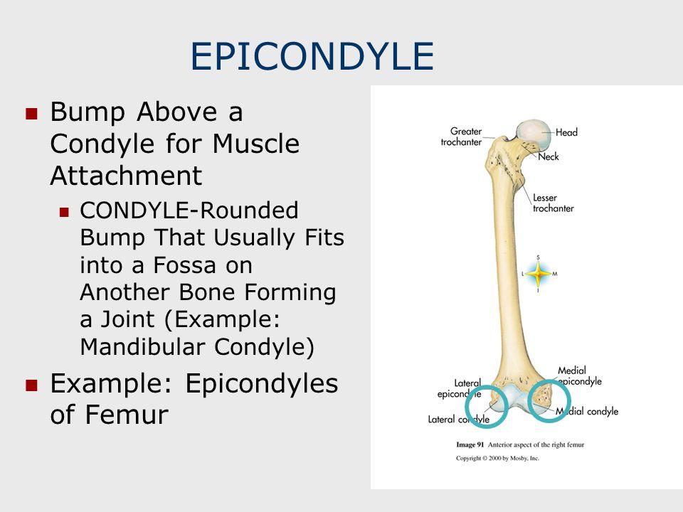 EPICONDYLE Bump Above a Condyle for Muscle Attachment