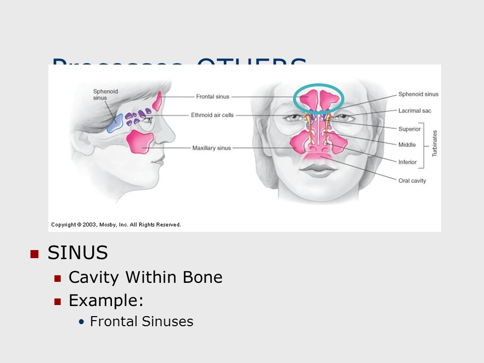 Processes-OTHERS SINUS Cavity Within Bone Example: Frontal Sinuses