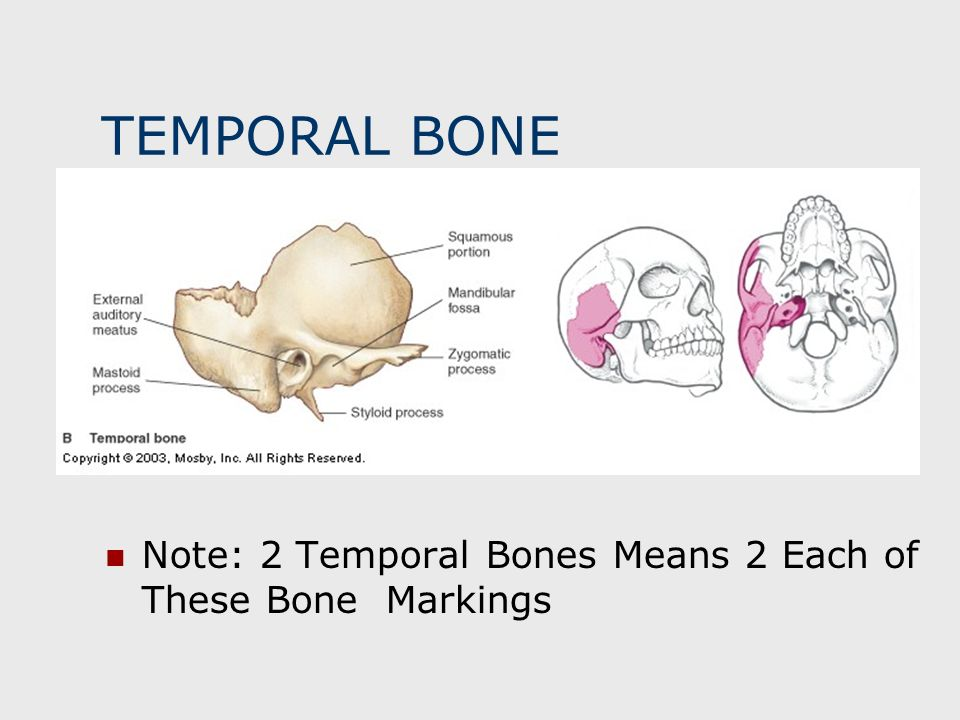 TEMPORAL BONE Note: 2 Temporal Bones Means 2 Each of These Bone Markings