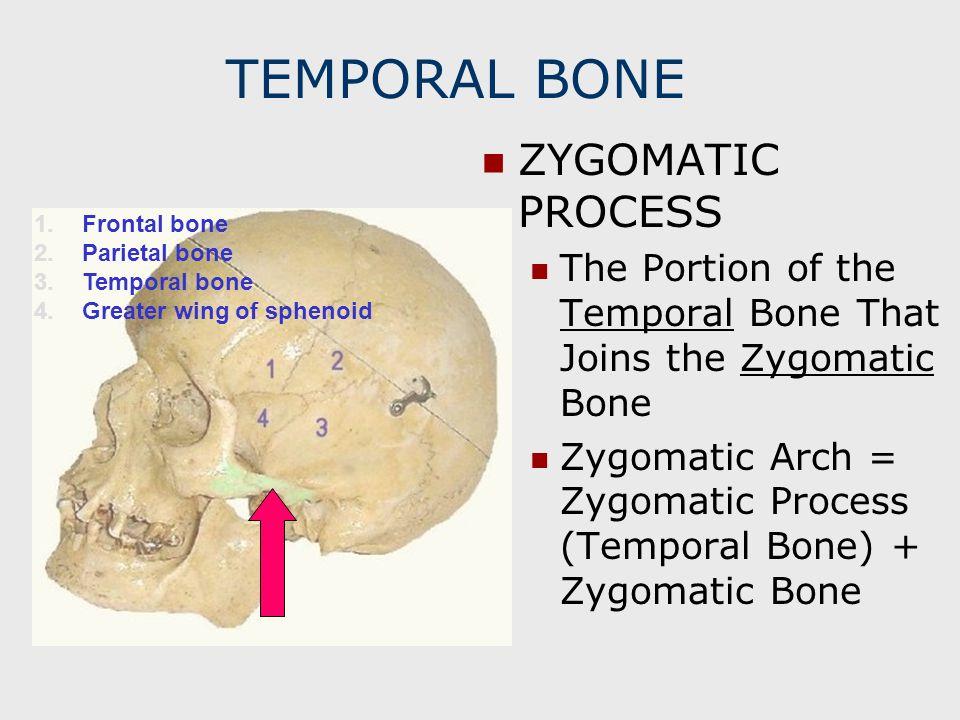 TEMPORAL BONE ZYGOMATIC PROCESS