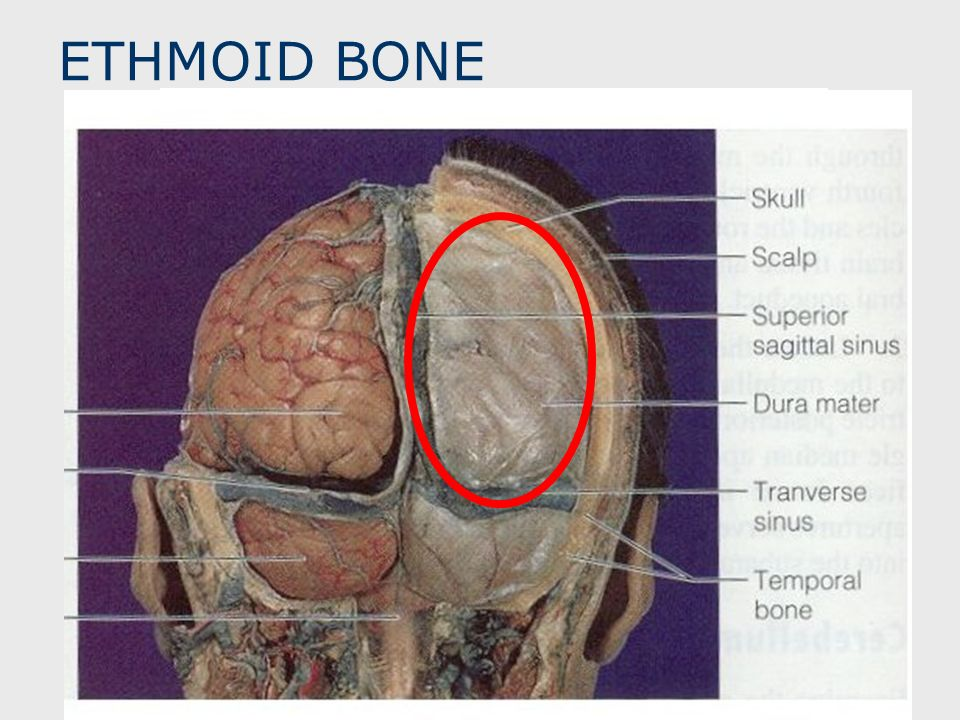 ETHMOID BONE CRISTA GALLI Upward Projection of Ethmoid Bone