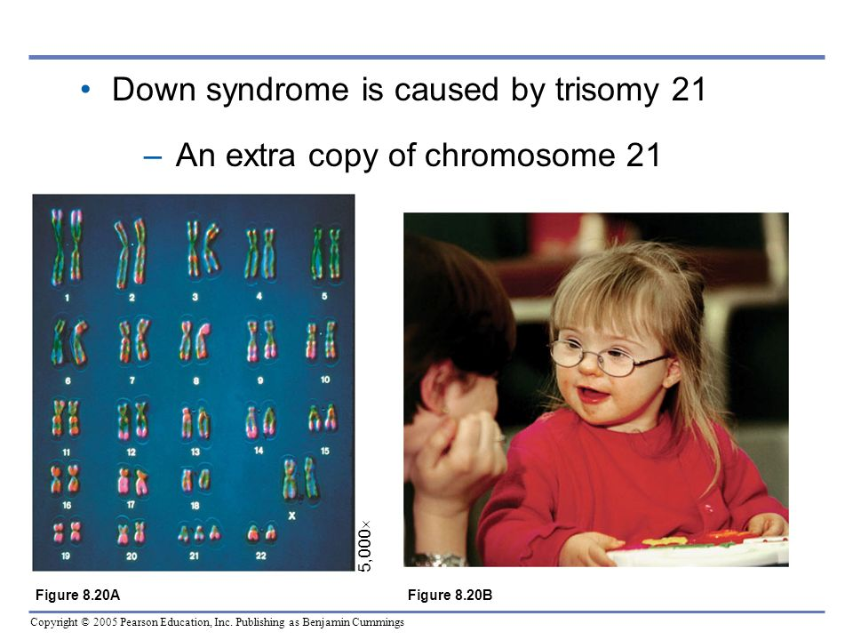 Down syndrome is caused by trisomy 21 An extra copy of chromosome 21