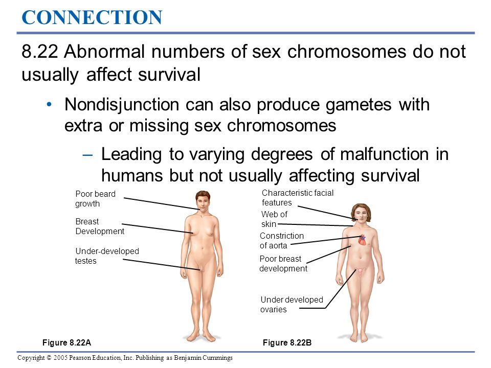 CONNECTION 8.22 Abnormal numbers of sex chromosomes do not usually affect survival.