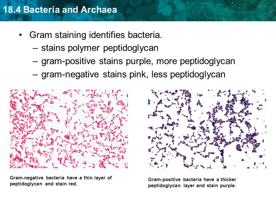 Gram staining identifies bacteria. stains polymer peptidoglycan