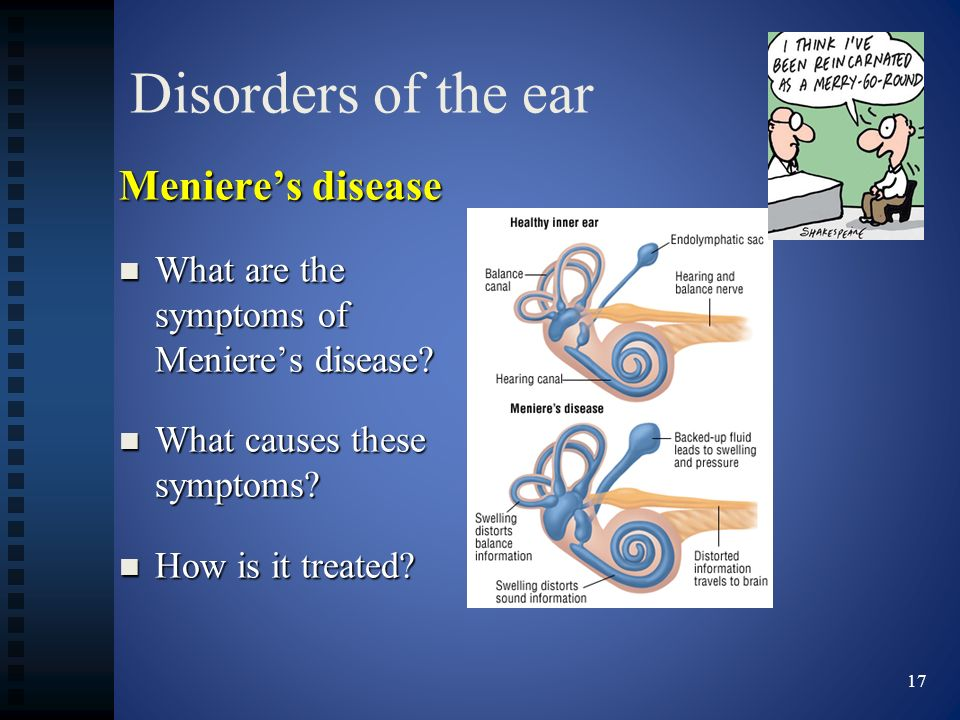 Disorders of the ear Meniere's disease