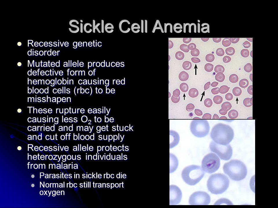 Sickle Cell Anemia Recessive genetic disorder