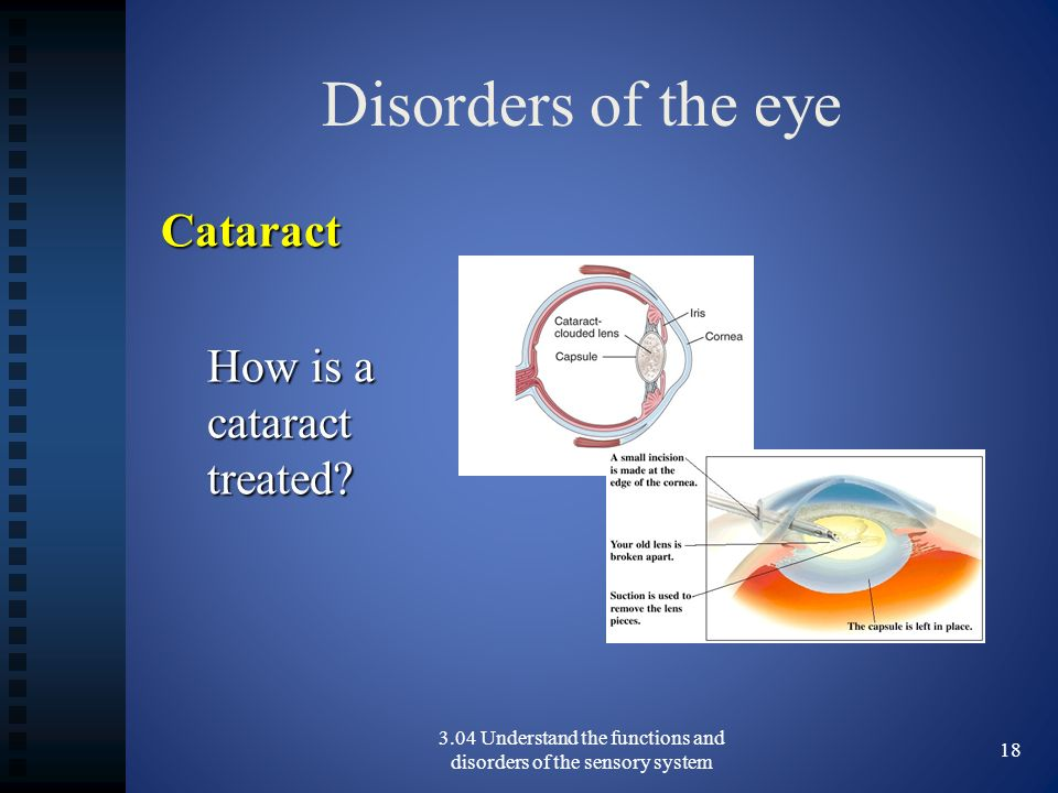 3.04 Understand the functions and disorders of the sensory system
