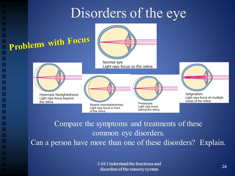 Problems with Focus Compare the symptoms and treatments of these common eye disorders.