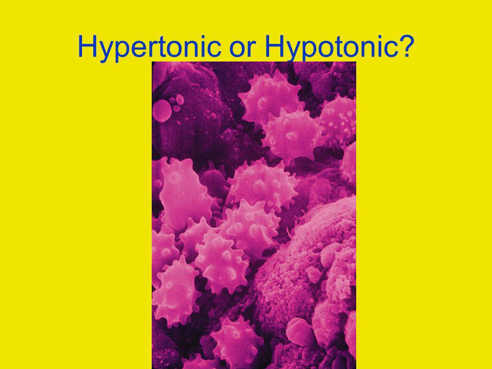 Hypertonic or Hypotonic