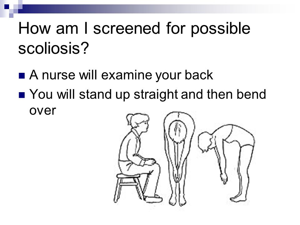 How am I screened for possible scoliosis