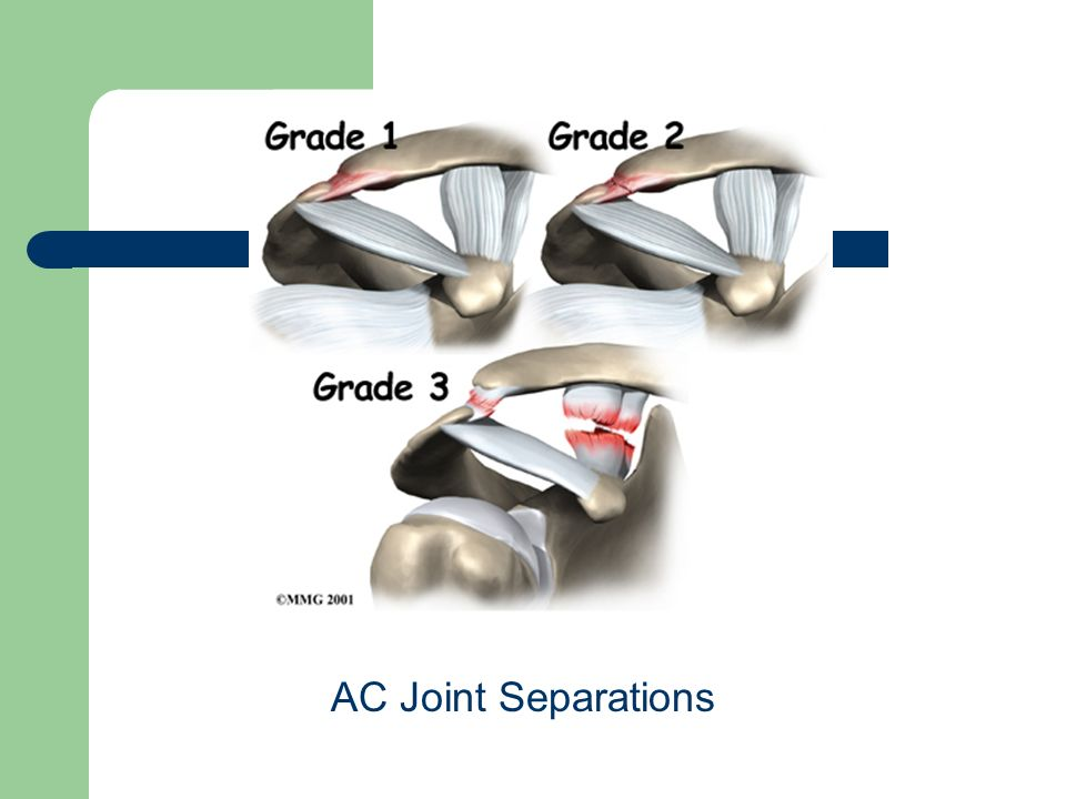 AC Joint Separations