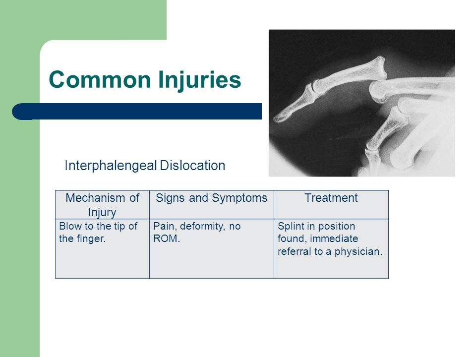 Common Injuries Interphalengeal Dislocation Mechanism of Injury