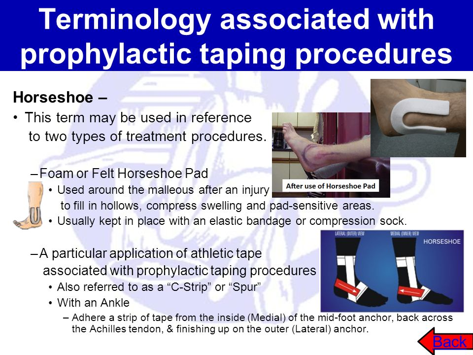 Terminology associated with prophylactic taping procedures