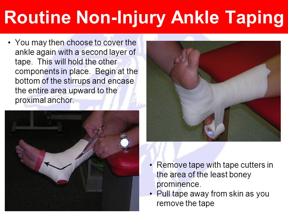 Routine Non-Injury Ankle Taping