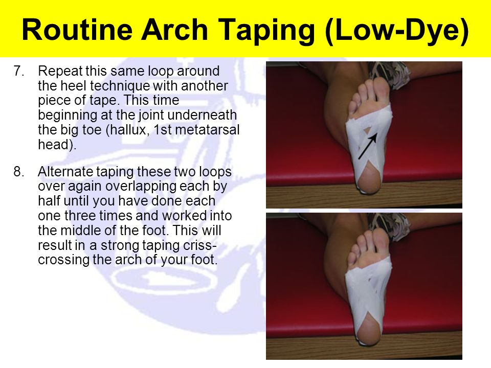 Routine Arch Taping (Low-Dye)