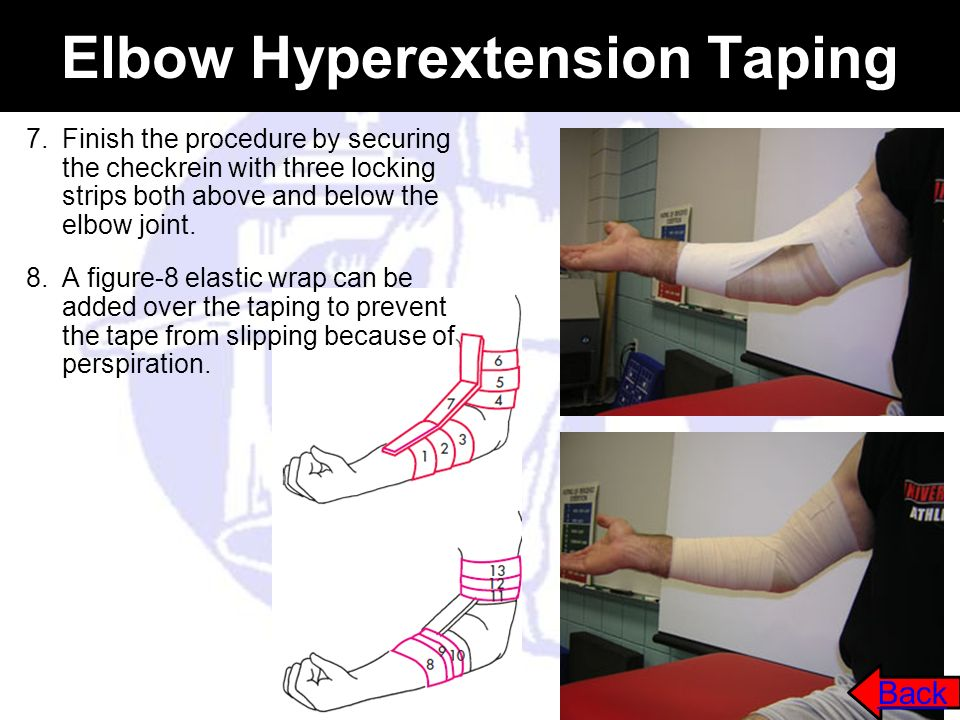 Elbow Hyperextension Taping