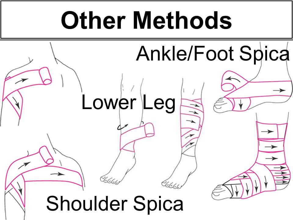 Other Methods Ankle/Foot Spica Lower Leg Shoulder Spica 48