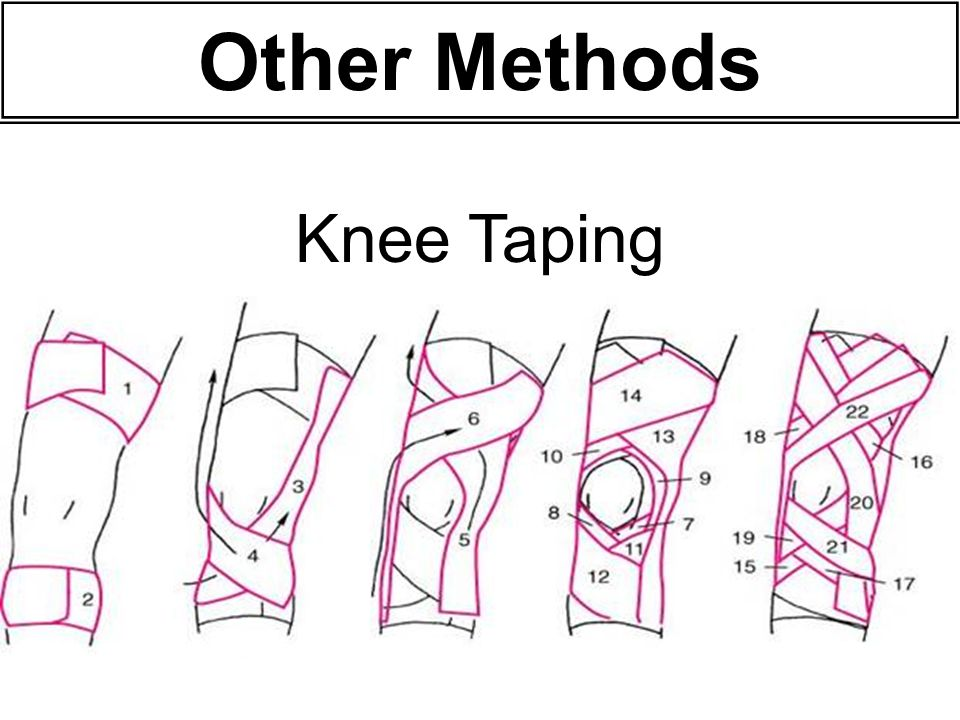 Other Methods Knee Taping 50