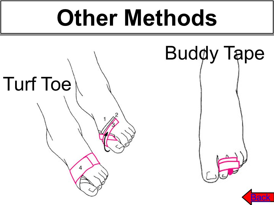 Other Methods Buddy Tape Turf Toe Back 52