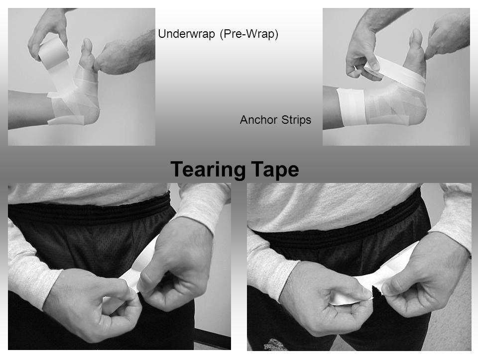 Underwrap (Pre-Wrap) Anchor Strips Tearing Tape