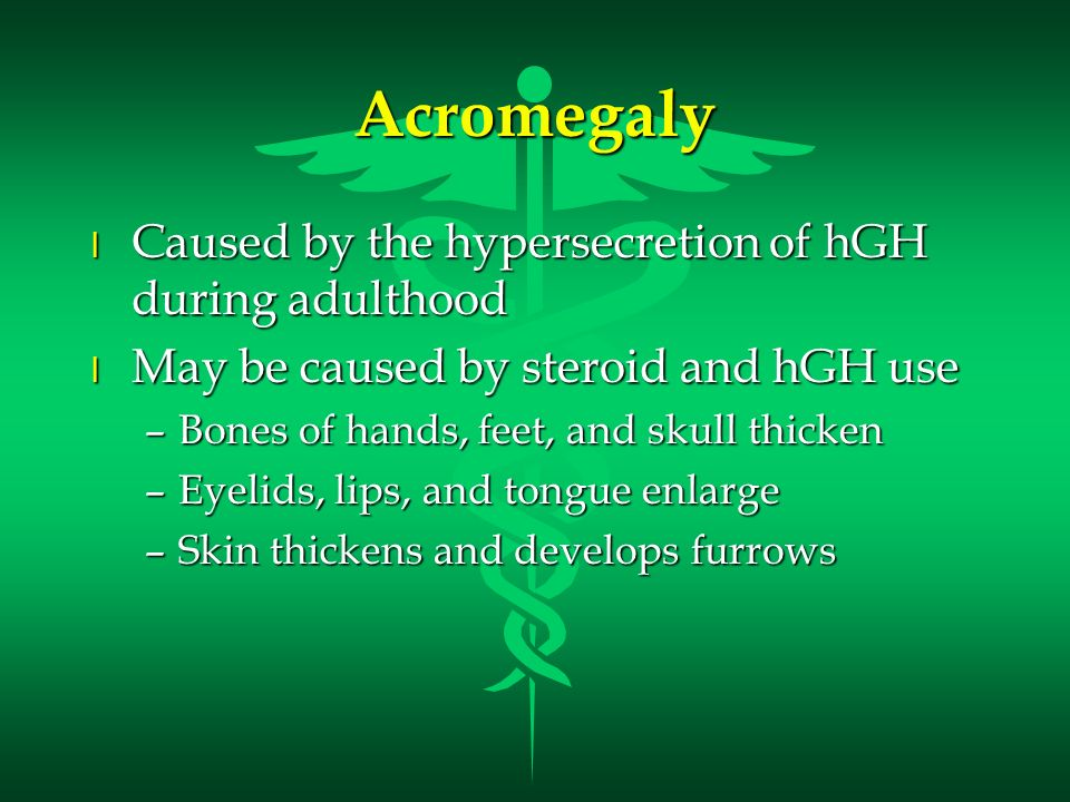 Acromegaly Caused by the hypersecretion of hGH during adulthood