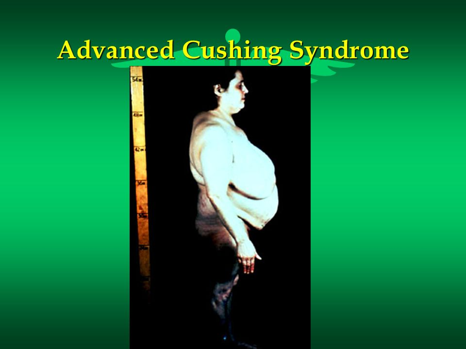 Advanced Cushing Syndrome