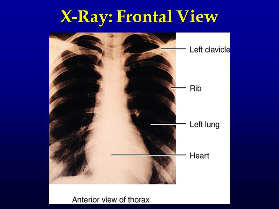 X-Ray: Frontal View