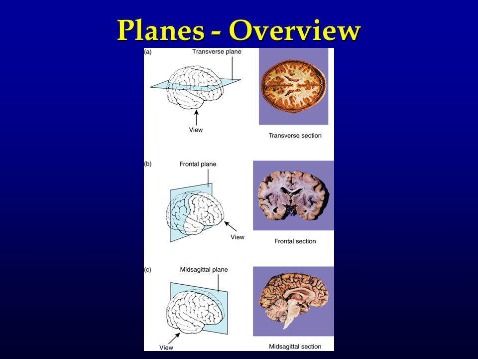 Planes - Overview
