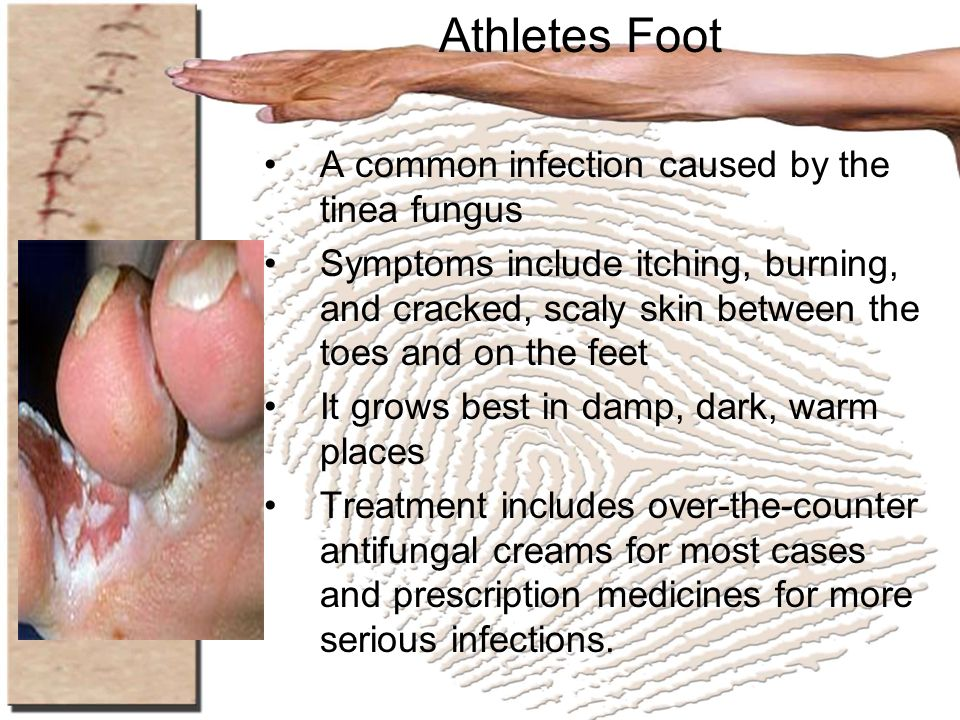 Athletes Foot A common infection caused by the tinea fungus