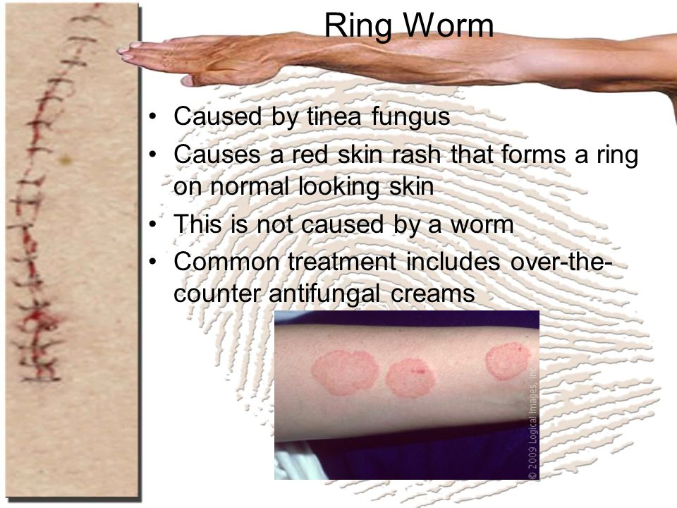 Ring Worm Caused by tinea fungus