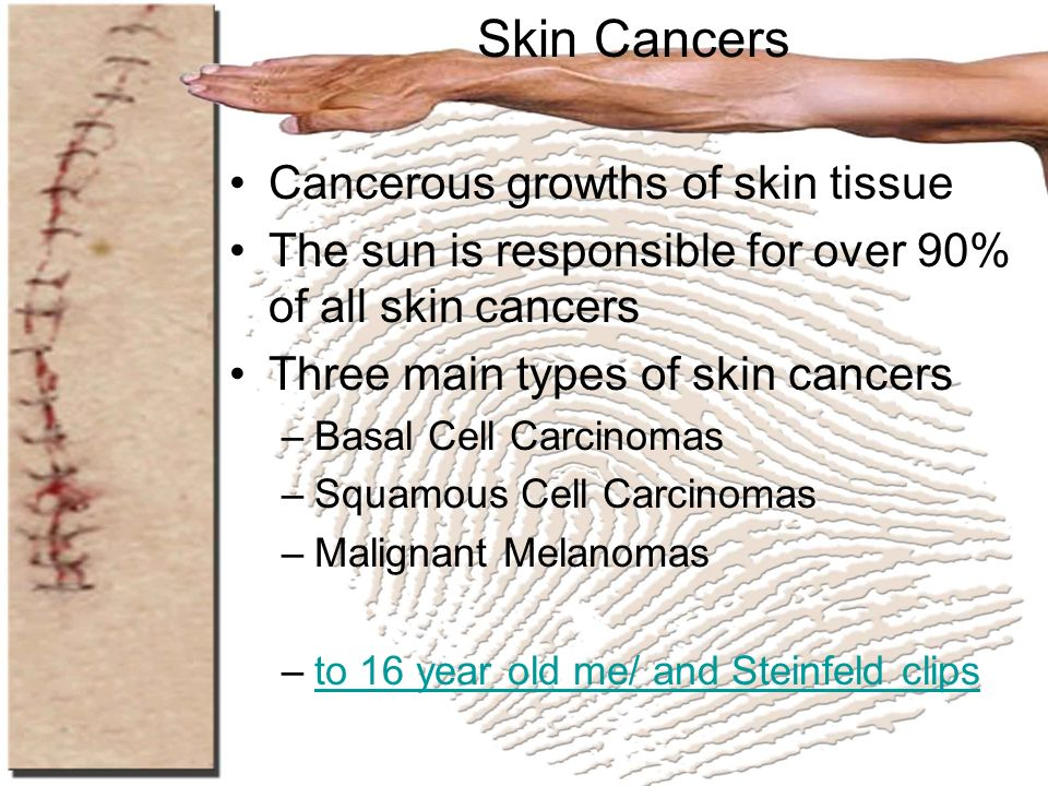 Skin Cancers Cancerous growths of skin tissue
