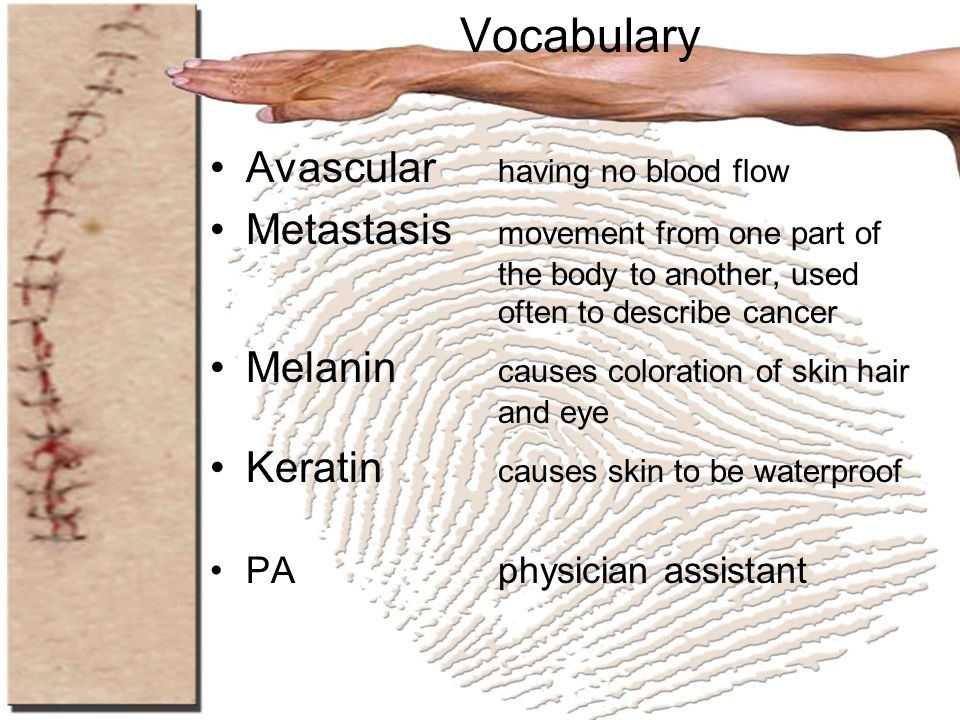 Vocabulary Avascular having no blood flow