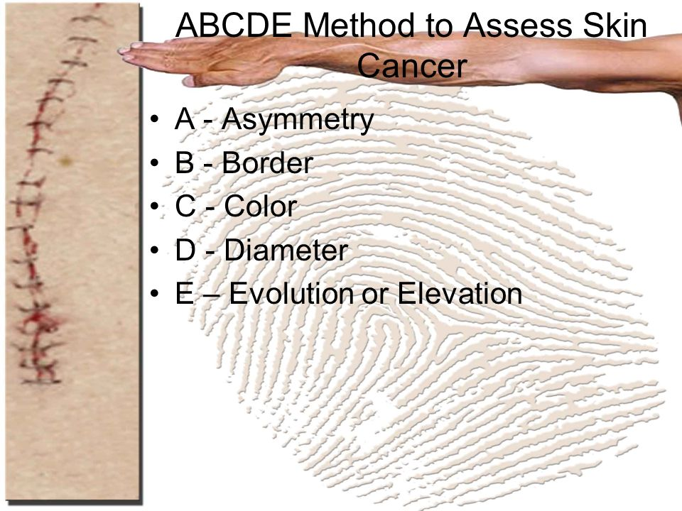 ABCDE Method to Assess Skin Cancer