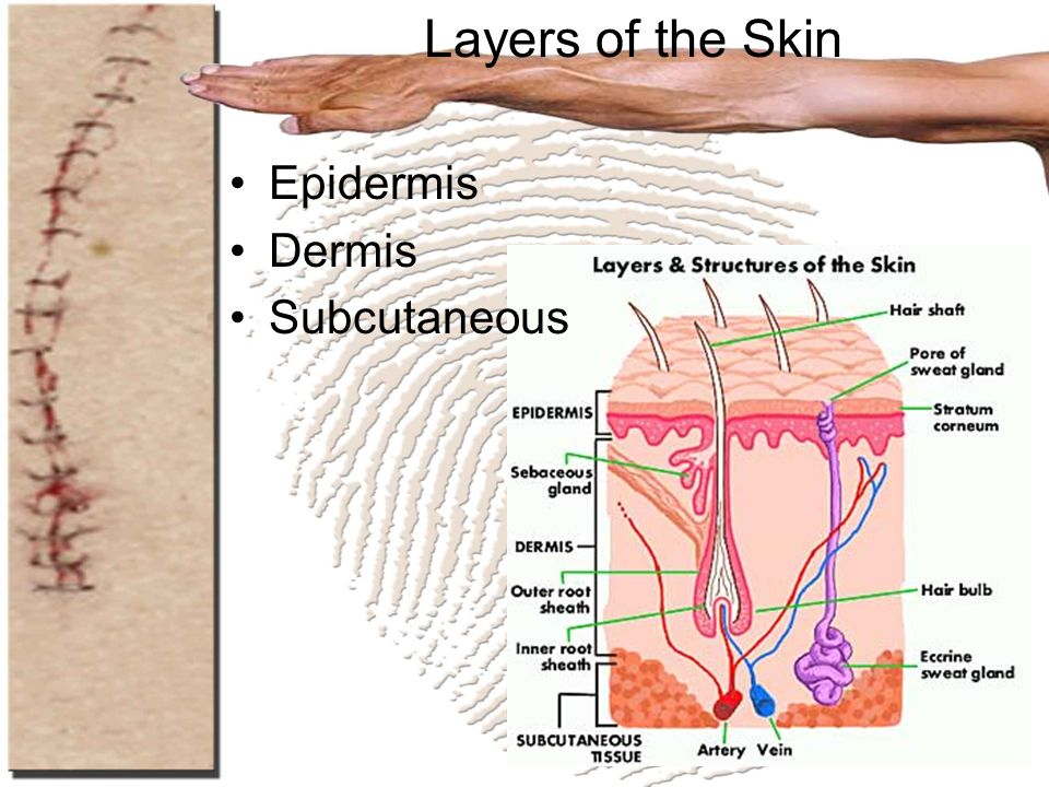 Layers of the Skin Epidermis Dermis Subcutaneous