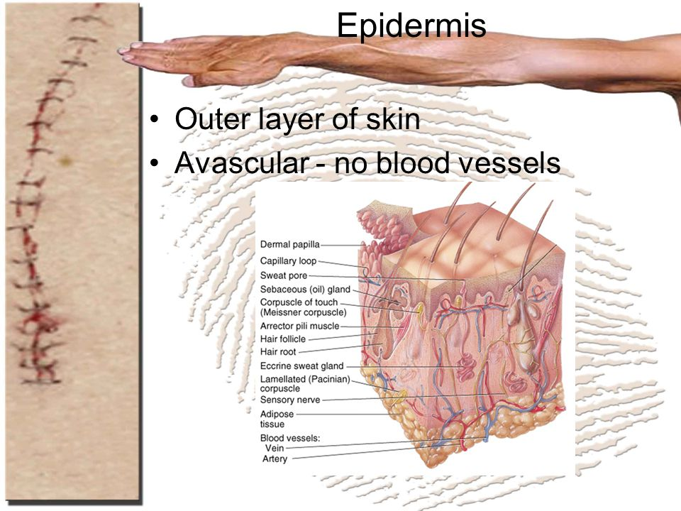Epidermis Outer layer of skin Avascular - no blood vessels