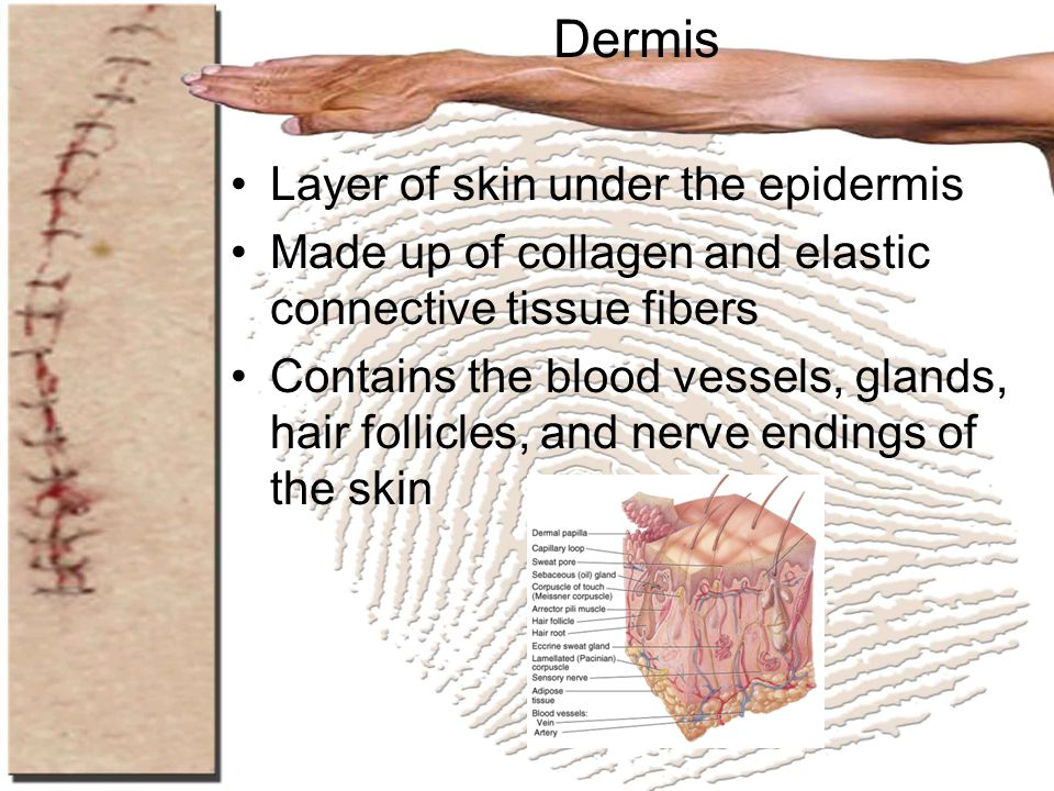 Dermis Layer of skin under the epidermis