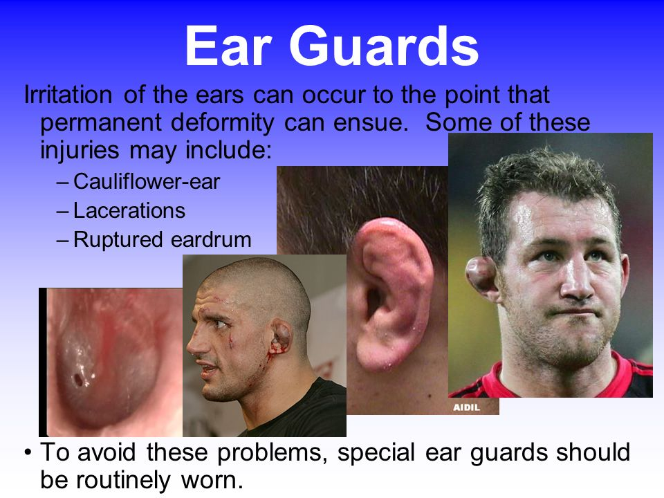 Ear Guards Irritation of the ears can occur to the point that permanent deformity can ensue. Some of these injuries may include:
