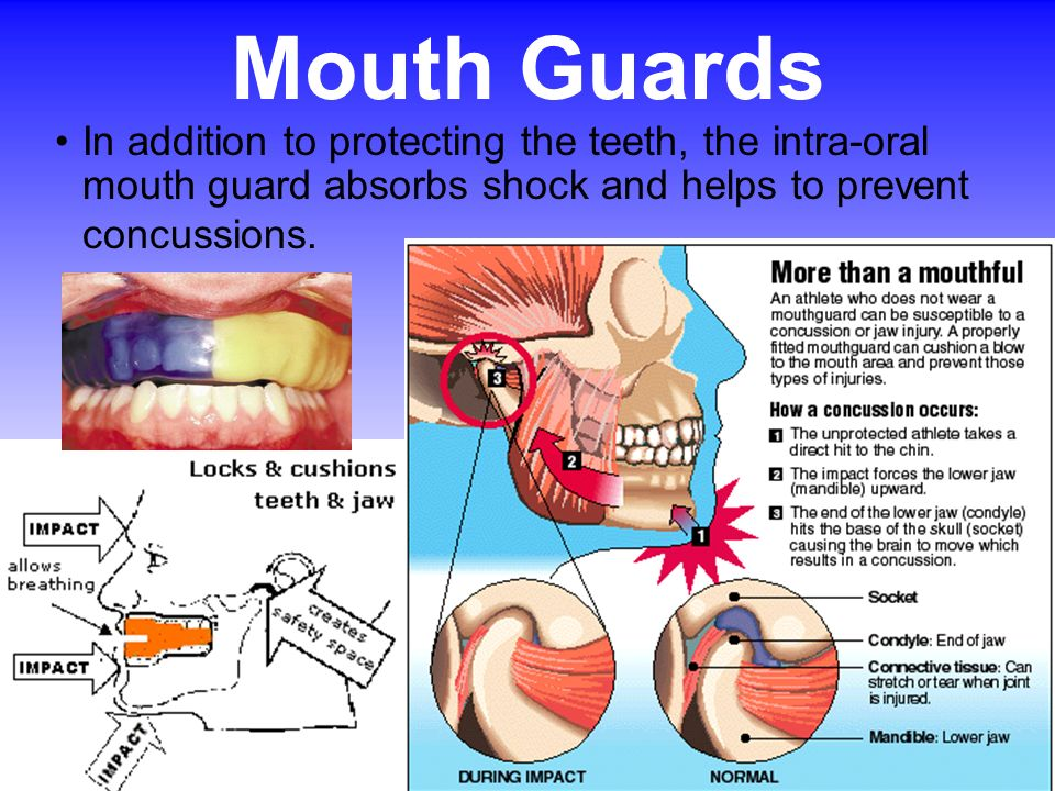 Mouth Guards In addition to protecting the teeth, the intra-oral mouth guard absorbs shock and helps to prevent concussions.