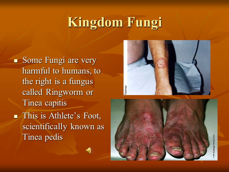 Kingdom Fungi Some Fungi are very harmful to humans, to the right is a fungus called Ringworm or Tinea capitis.