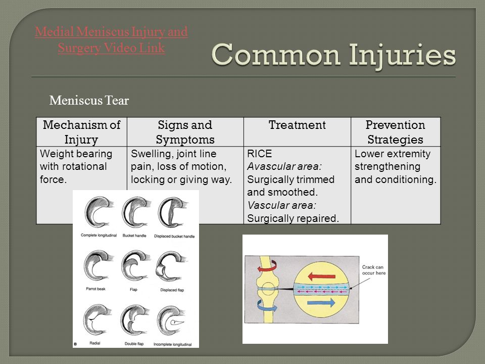 Common Injuries Medial Meniscus Injury and Surgery Video Link