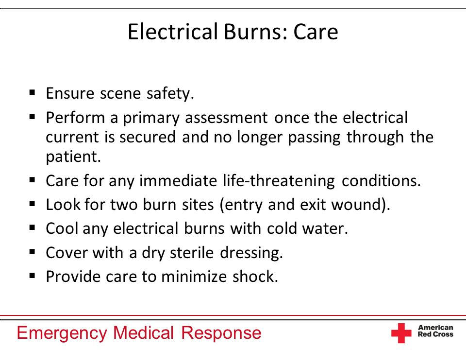 Electrical Burns: Care