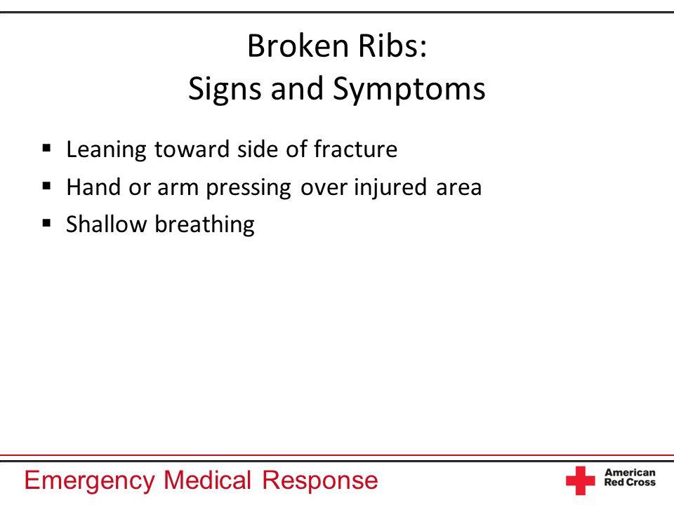 Broken Ribs: Signs and Symptoms