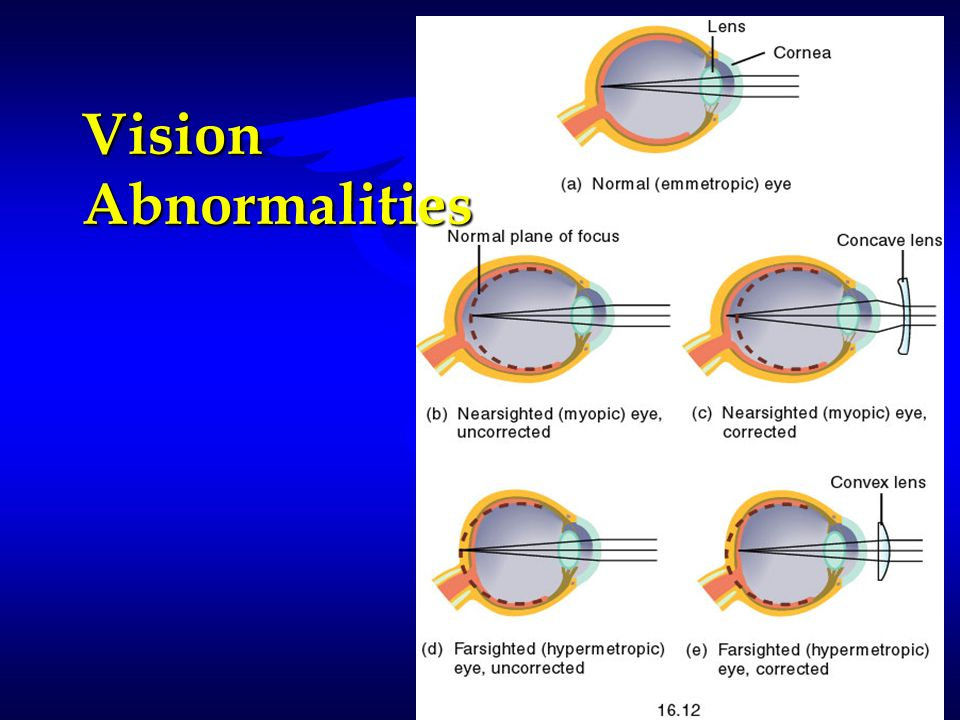Vision Abnormalities