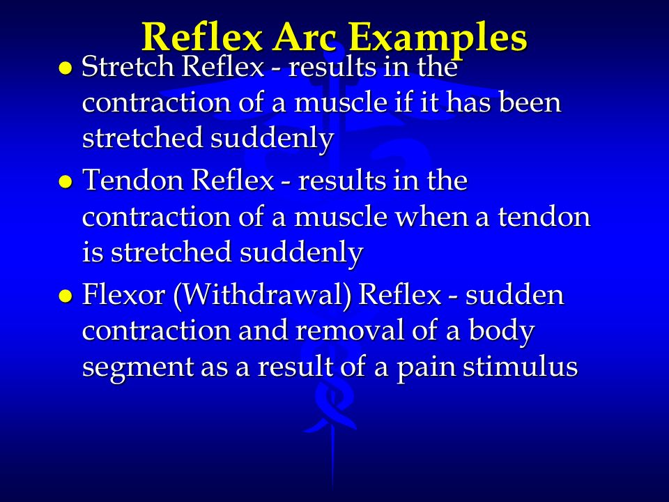 Reflex Arc Examples Stretch Reflex - results in the contraction of a muscle if it has been stretched suddenly.