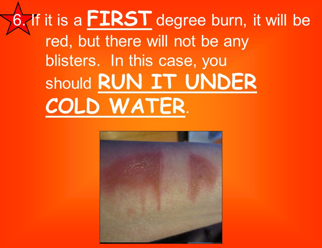 6. If it is a FIRST degree burn, it will be