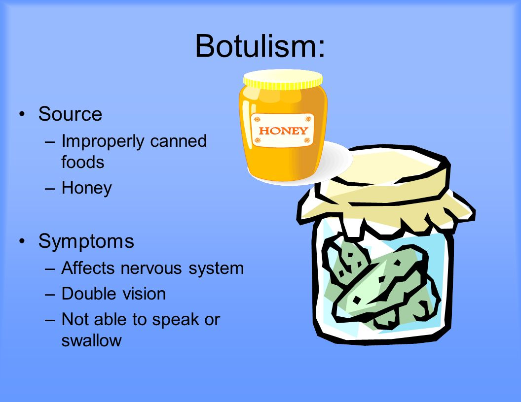 Botulism: Source Symptoms Improperly canned foods Honey