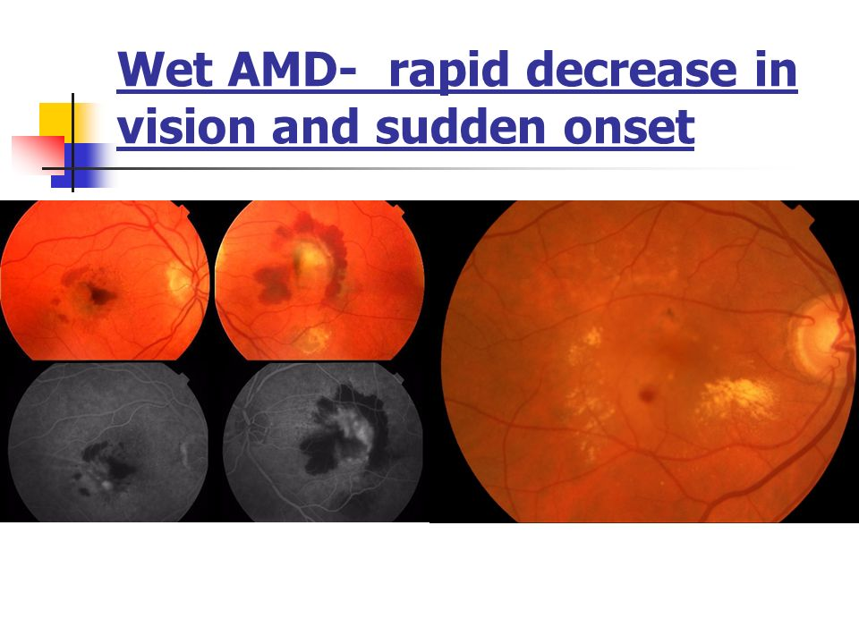 Wet AMD- rapid decrease in vision and sudden onset