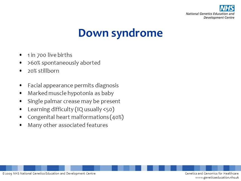 Down syndrome 1 in 700 live births >60% spontaneously aborted