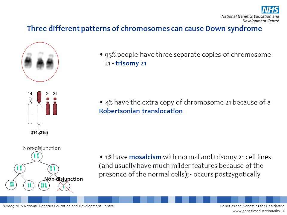 Three different patterns of chromosomes can cause Down syndrome